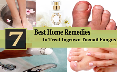 7 Best Home Remedies For Toenail Fungus Treatment