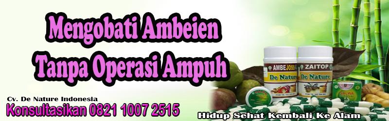 67_Mengobati_Ambeien_Tanpa_Operasi_Ampuh
