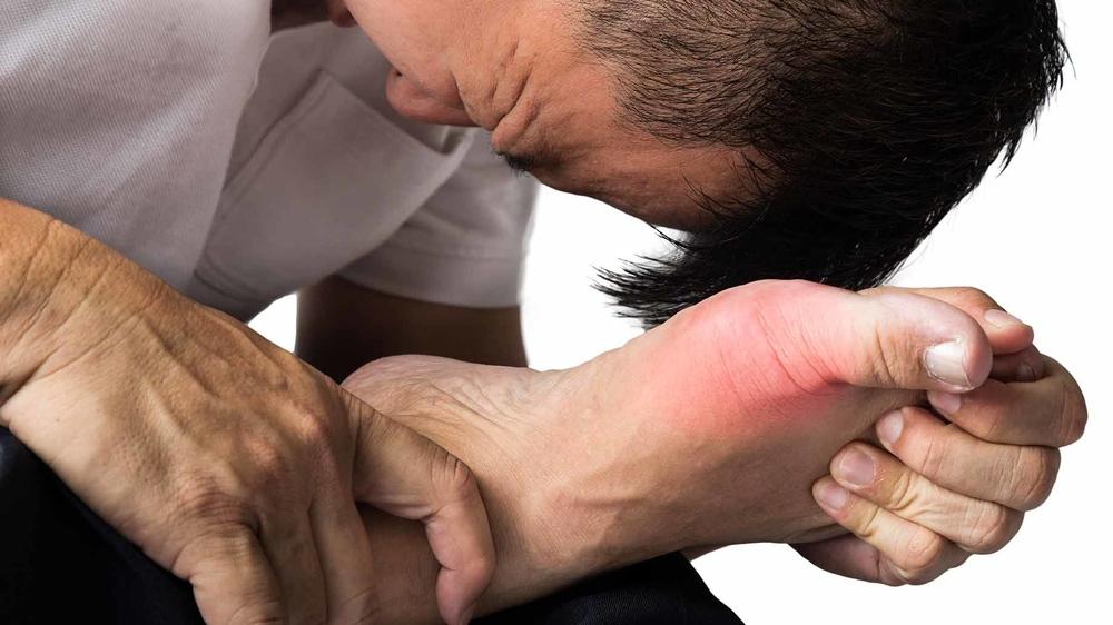 gout-natural-remedies