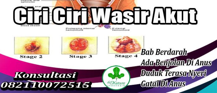 17_Ciri_Ciri_Wasir_Akut