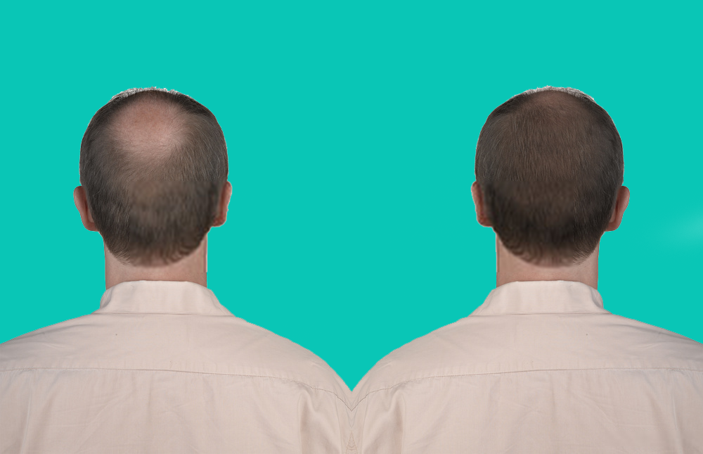 Difference_Between_the_Mature_Hairline_and_Receding_Hairline
